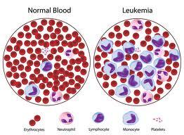 leukemia kanker darah